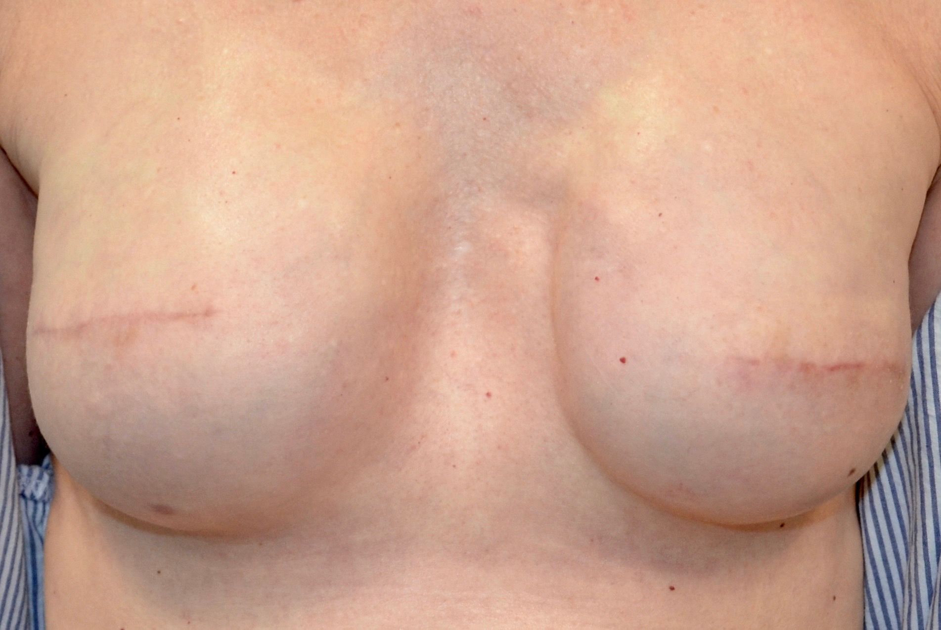 Bi-Lateral Mastectomy with No Nipple Reconstruction