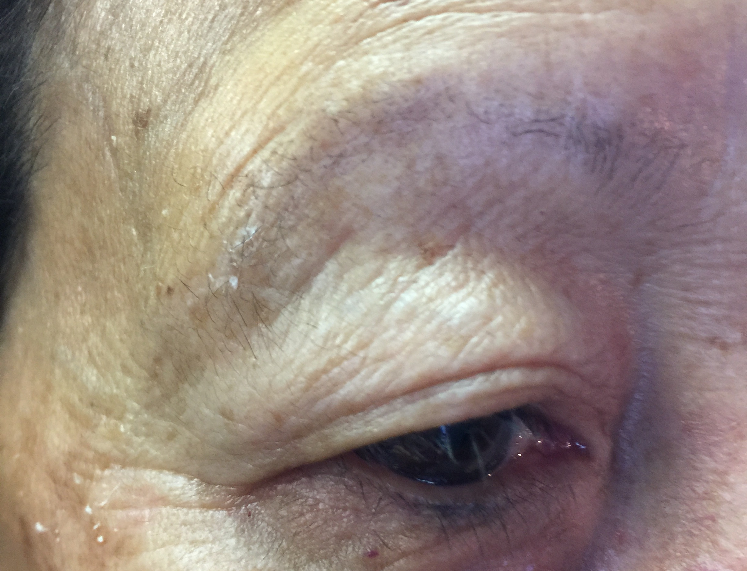 Brow Before Microblade Procedure