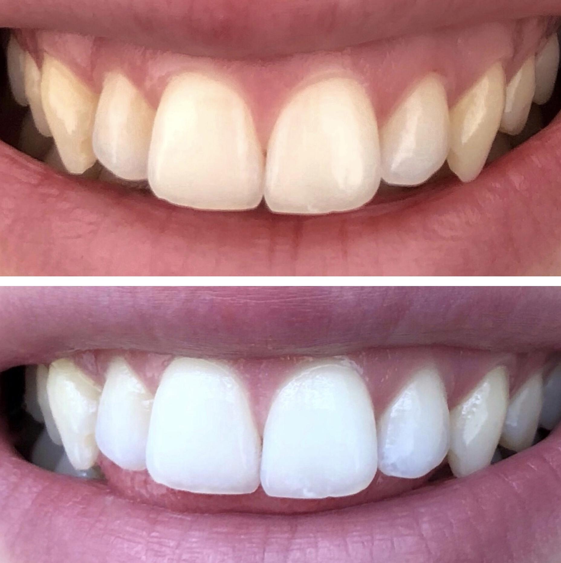 best-teeth-whitening-smile-brilliant-4