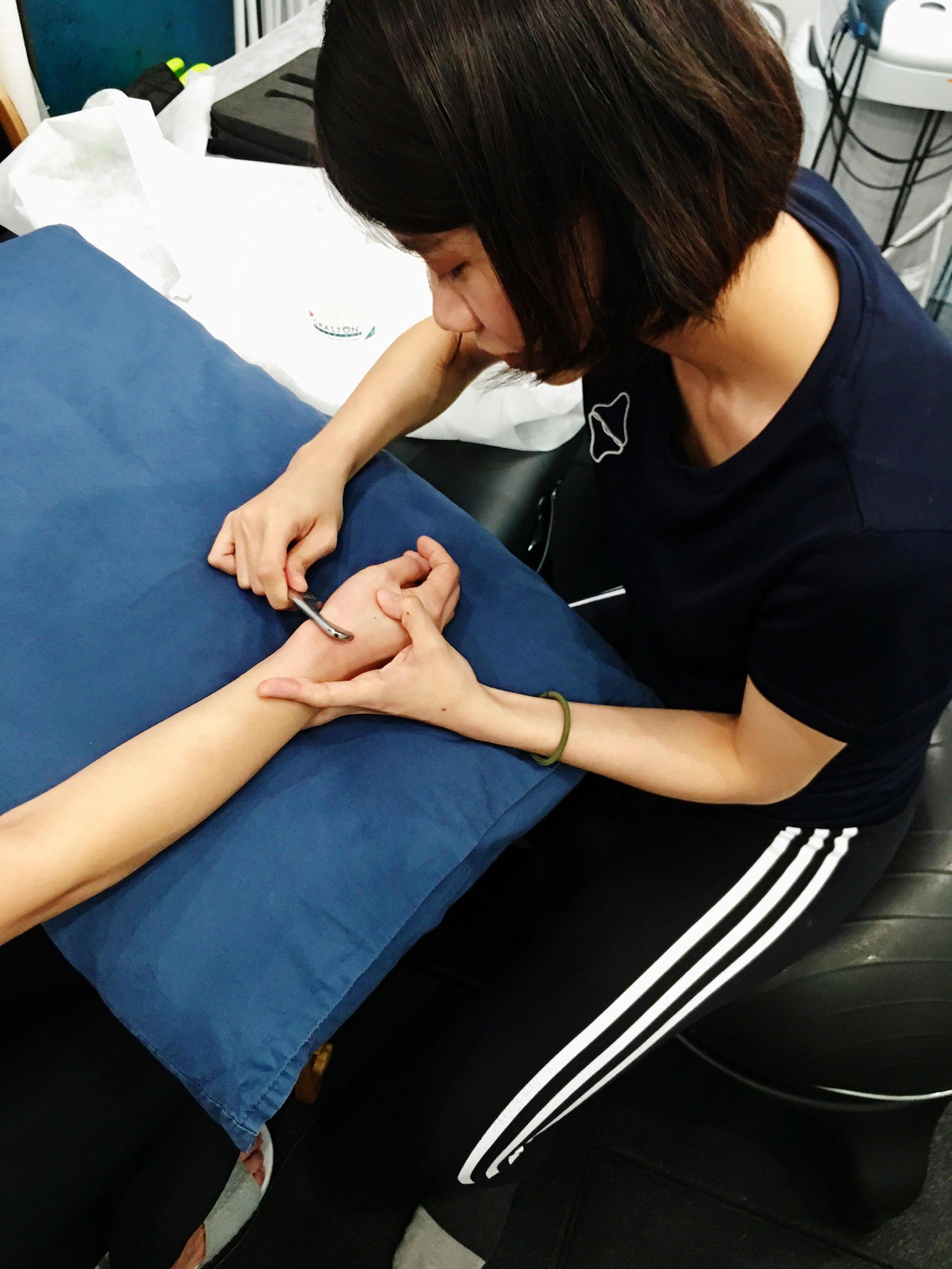 針對橈骨莖突壓痛點,使用 Graston Technique 治療