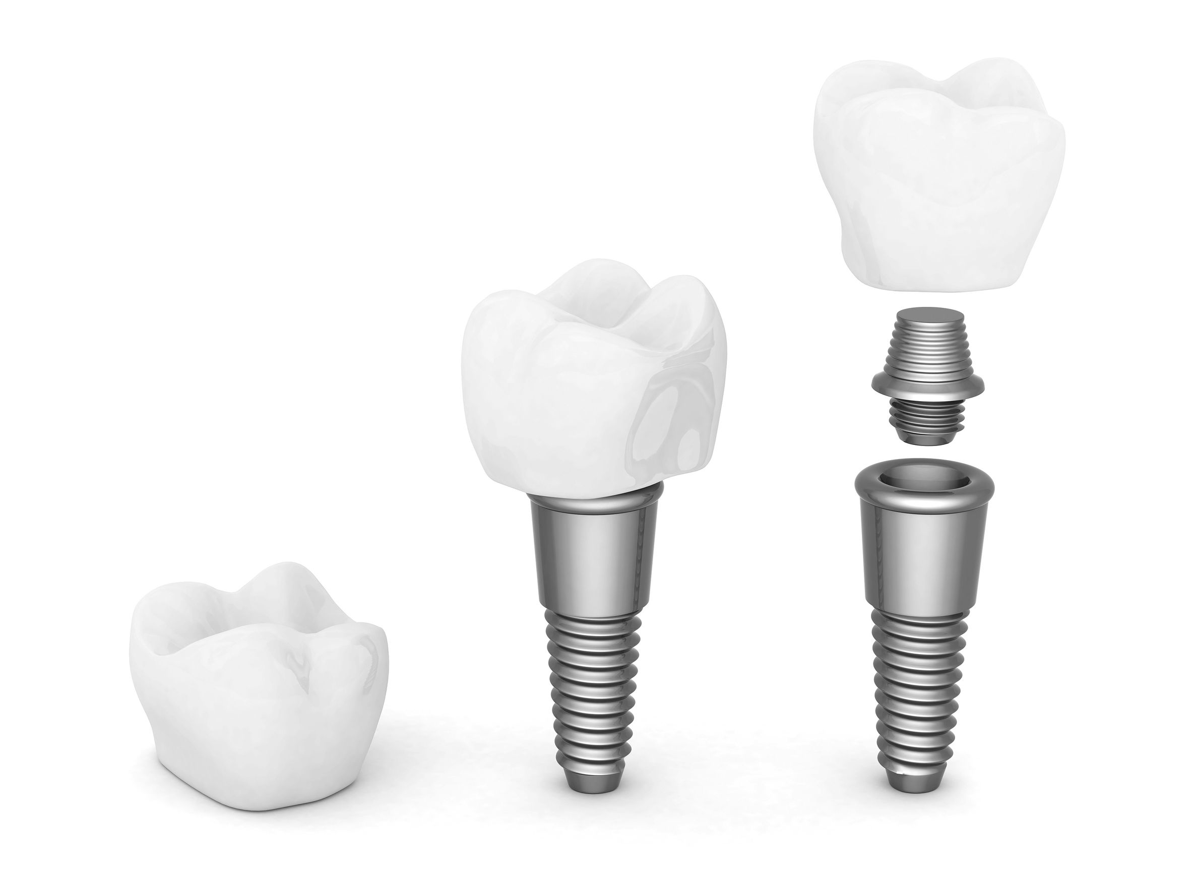 Implants are comprised of 3 components, the implant itself, healing abutment, and restorative crown