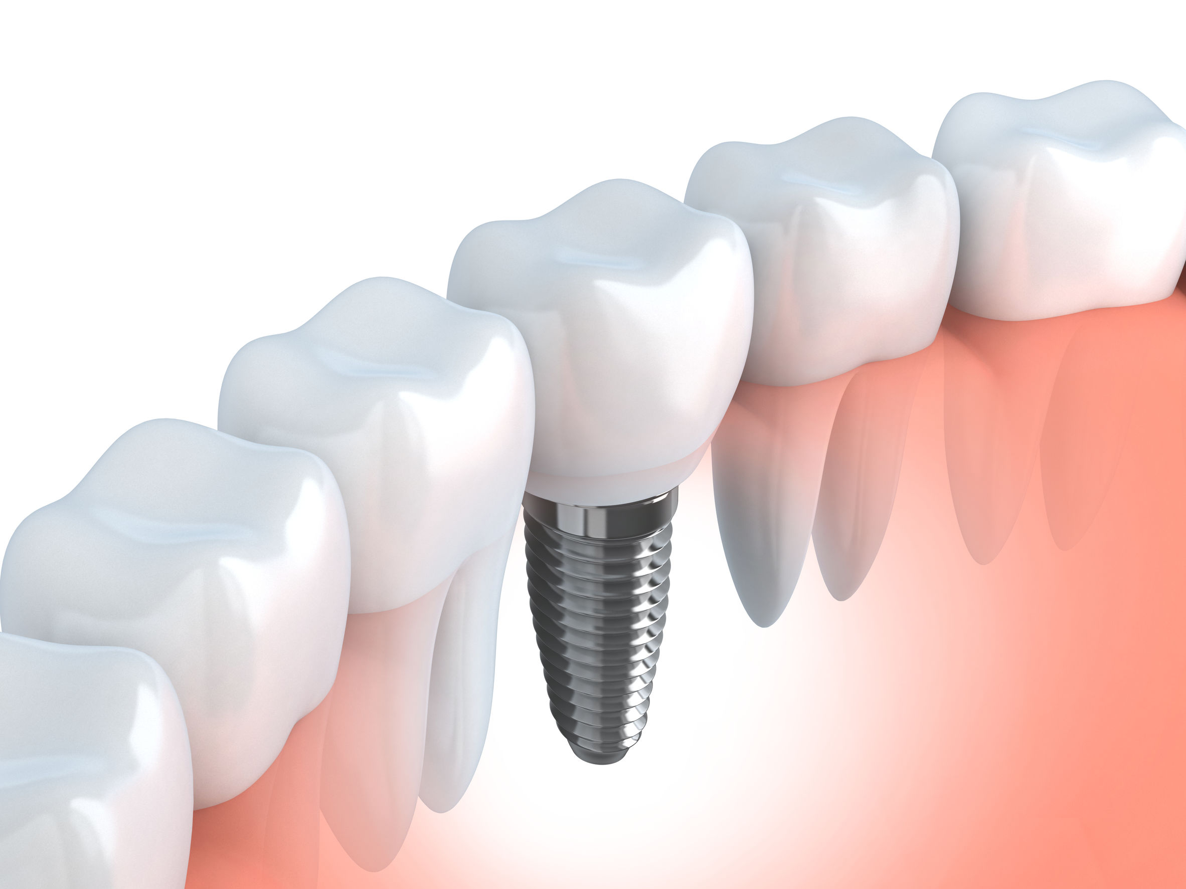 Illustration of a placed implant