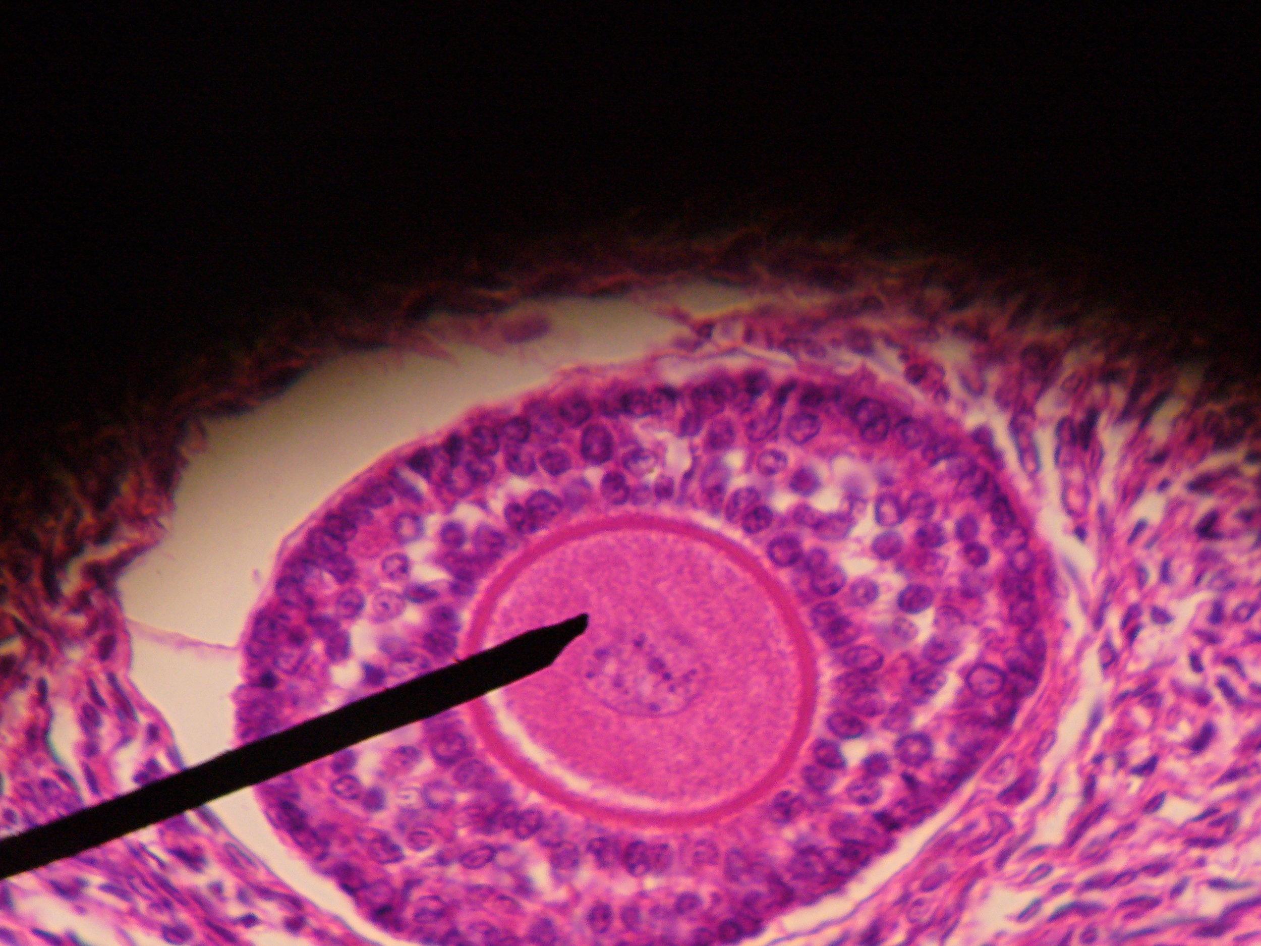 Human_ovarian_follicle.jpg