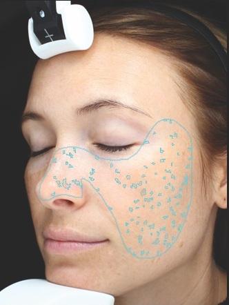 Flecken - Als Flecken werden braune oder rote Läsionen, Hyperpigmentierungen bzw. alle Farbkontraste aufgezeigt, die vom herkömmlichen Hautfarbton abweichen.