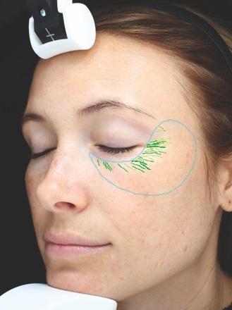 Falten - Bei dem Wert Falten wird die Hautstruktur an der Stirn und der Augenregion ausgewertet und deren Tiefe gemessen.