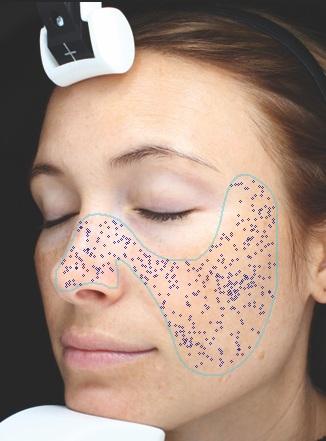 Poren - Hier wird die Porigkeit der Haut gemessen. Ist dieser Wert erhöht, kann es sich z.B. um eine Überverhornung handeln.