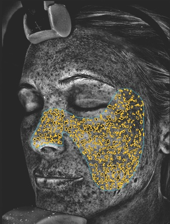 UV-Flecken - Durch die Einwirkung der Sonne auf die Haut koaguliert (gerinnt) das Melanin (Farbpigment der Haut) in der Haut. Die Haut schützt sich durch das Melanin vor UV-Strahlen. Mit diesem Wert können wir die vergangene UV-Belastung der Haut feststellen.