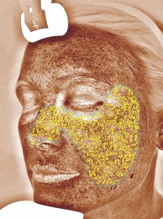 Braune Flecken - Dieser Wert gibt die Melaninkonzentration in der Haut wieder. Im Gegensatz zu den UV-Flecken sind die braunen Flecken in der Regel optisch sichtbar und werden z.B. als Sommersprossen oder als störende Pigmentflecken wahrgenommen.
