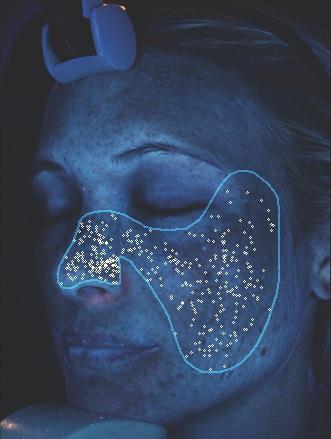 Porphyrine - Porphyrine sind Stoffwechselprodukte des Aknebakteriums Probionibacterium acnes, die unter UV-Licht fluoreszieren. Ist dieser Wert erhöht, bedeutet das, dass das Bakterium aktiver ist. Dies kann Hautunreinheiten/Entzündungen und ist außerdem ein Indikator für den Zustand Ihrer Hautbarriere.
