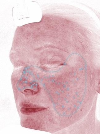 Roter Bereich - Durch die Darstellung des Hämoglobins (Blutfarbstoff) des Blutes können der Grad der Durchblutung, Reizungen, Teleangiektasien (kleine Äderchen) sichtbar gemacht werden.