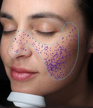 Hautrelief mit vergrößerten Poren