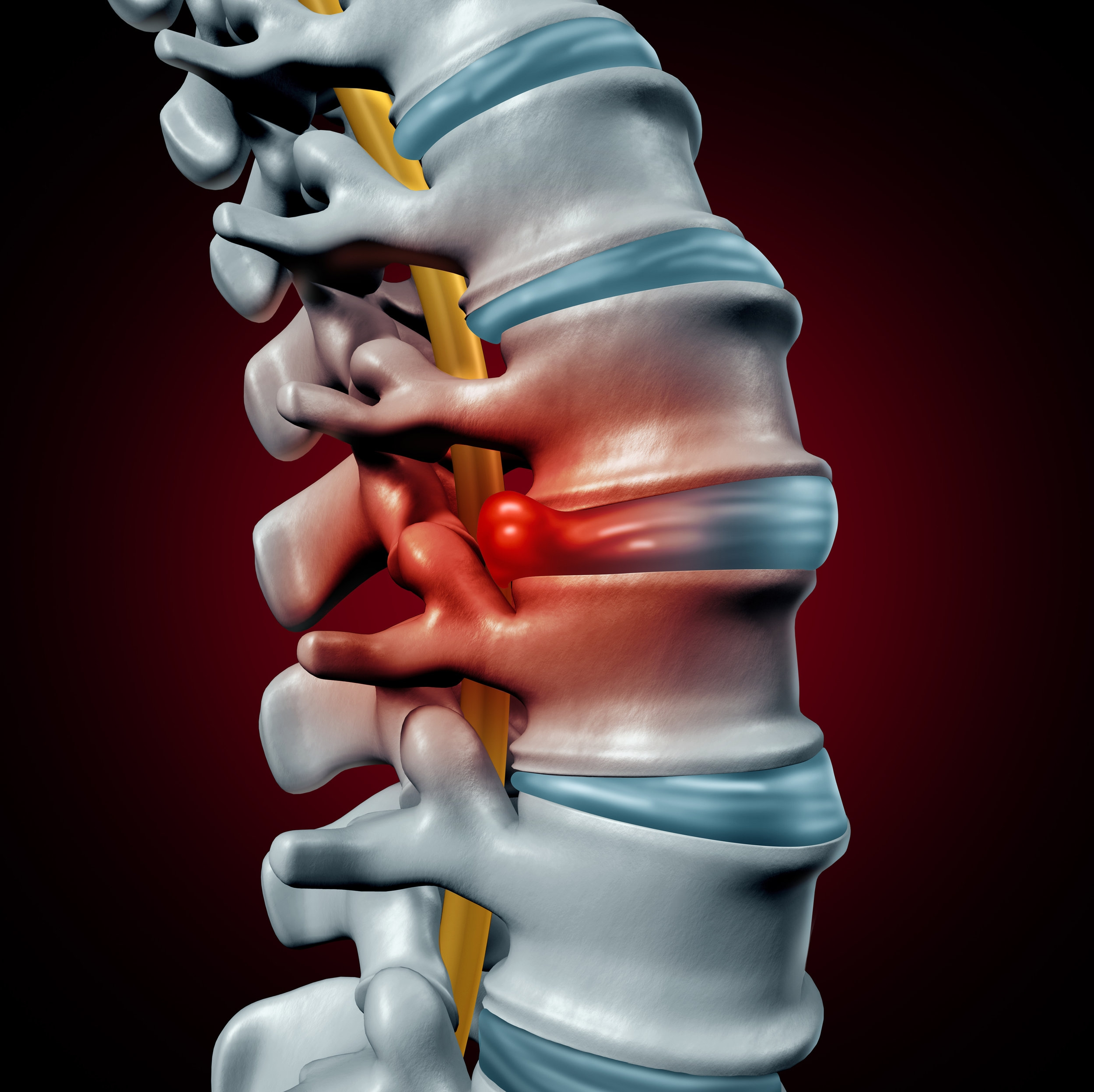 Spine with bulging and herniated disc