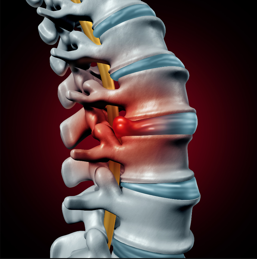 Spine with bulging disc and inflamed nerve