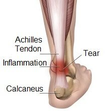Achilles tendon inflammation and tear