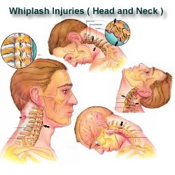 auto accident whiplash.jpg