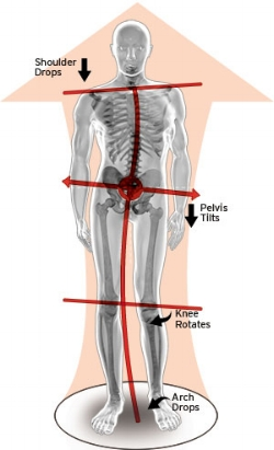 Body imbalance from poor foot support.