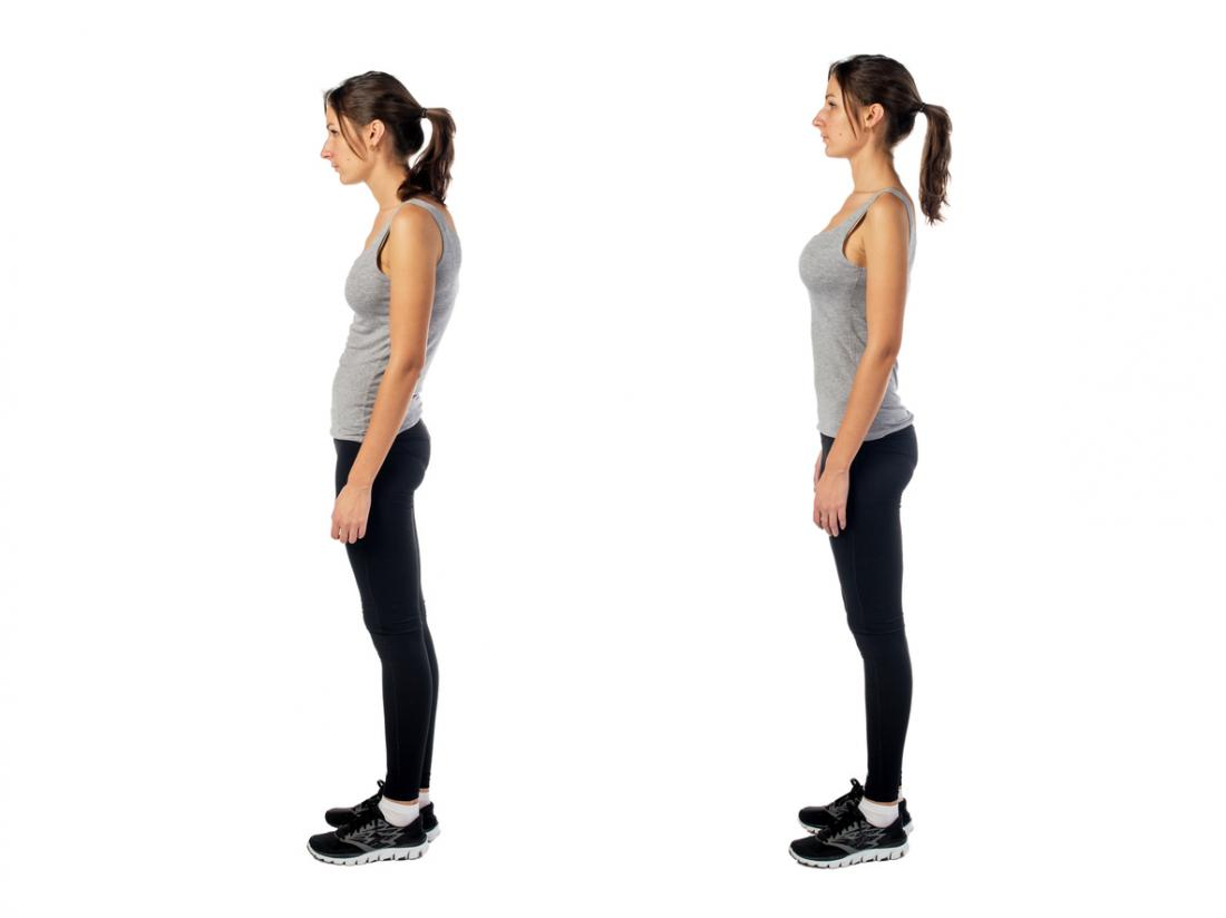 woman-with-rounded-shoulders.jpg