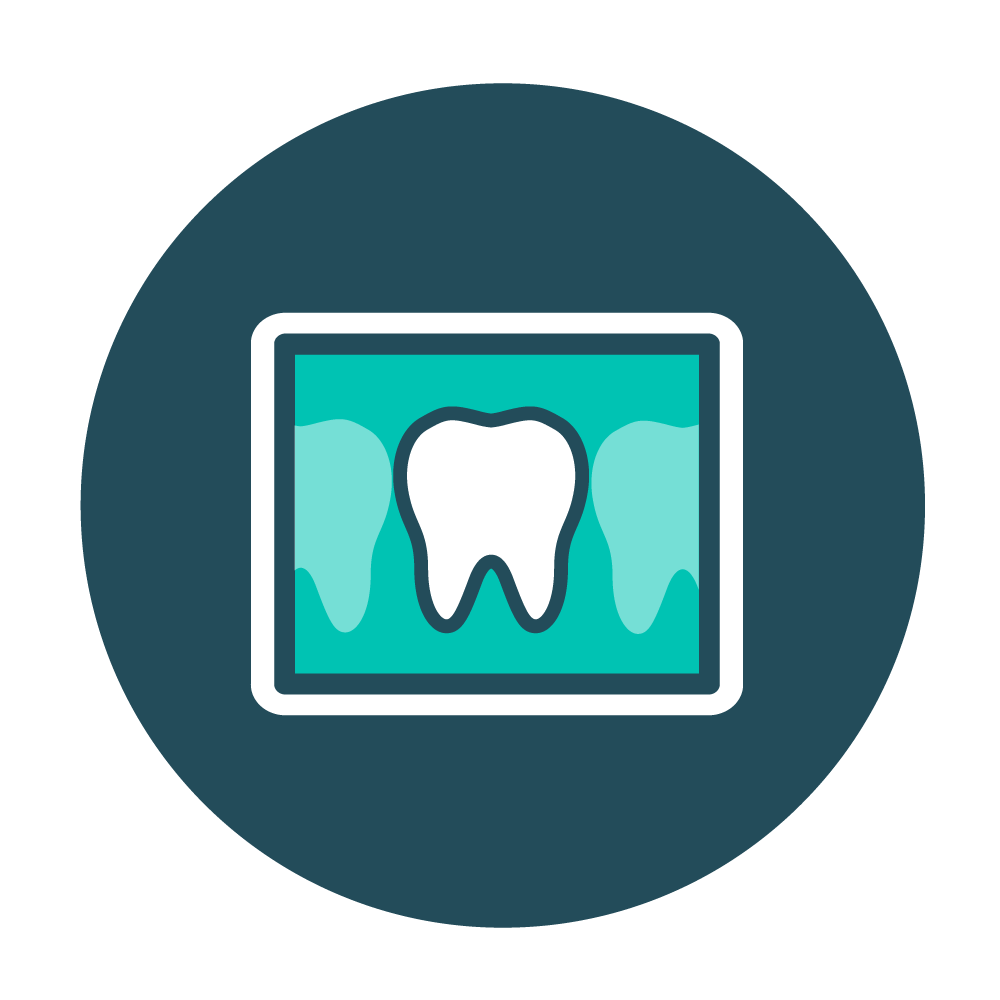 X-Rays - X-rays are performed on the upper and lower teeth to diagnose problems otherwise unnoticed during an examination, such as impacted teeth, abscesses, cysts or tumors, and decay between the teeth.
