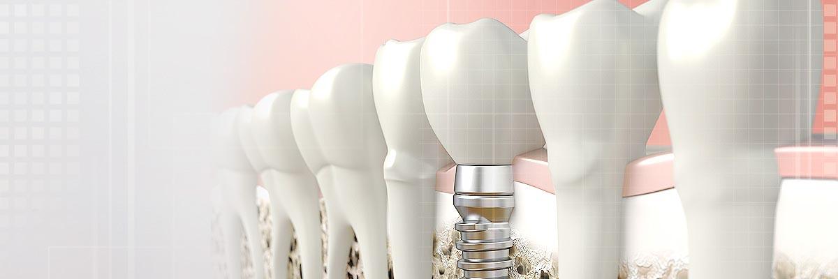 prosthodontist-header.jpg