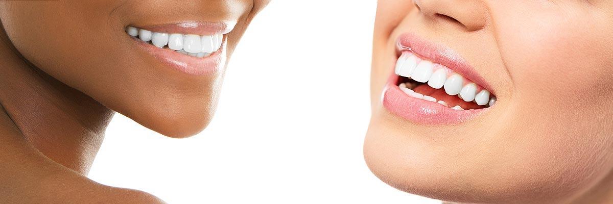teeth whitening in Carlsbad - teeth banner