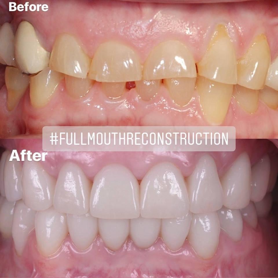 full mouth reconstruction.jpg