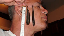 Leeches shown during treatment of varied conditions
