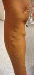 Example of varicose veins