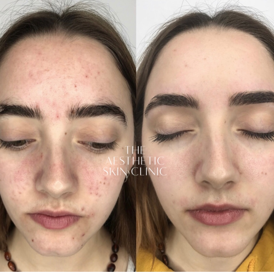 2 DermaSweep MD treatments with a Full Home Care Prescription