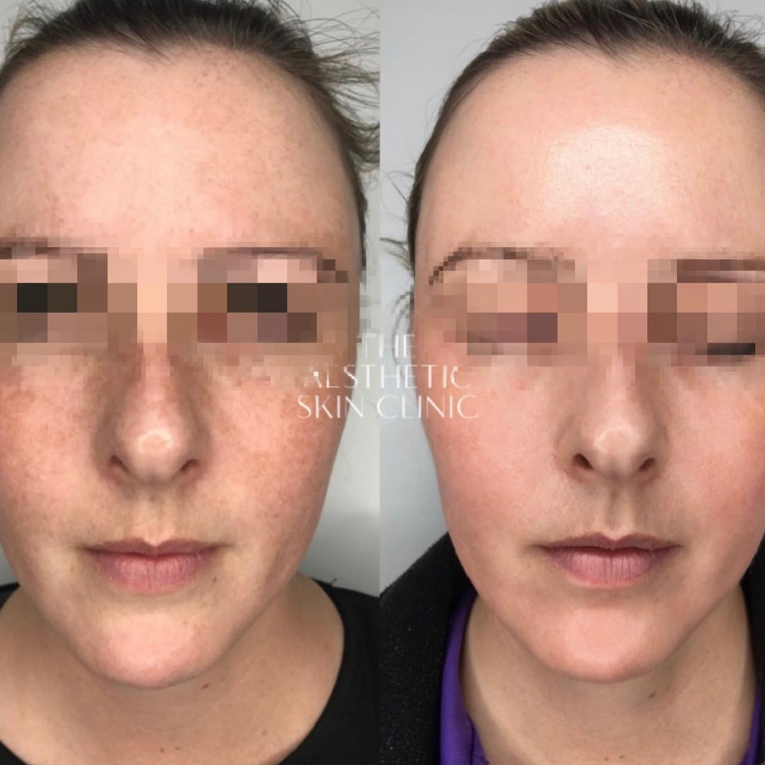 1x Cosmelan Depigmentation Procedure with a Full Home Care Prescription