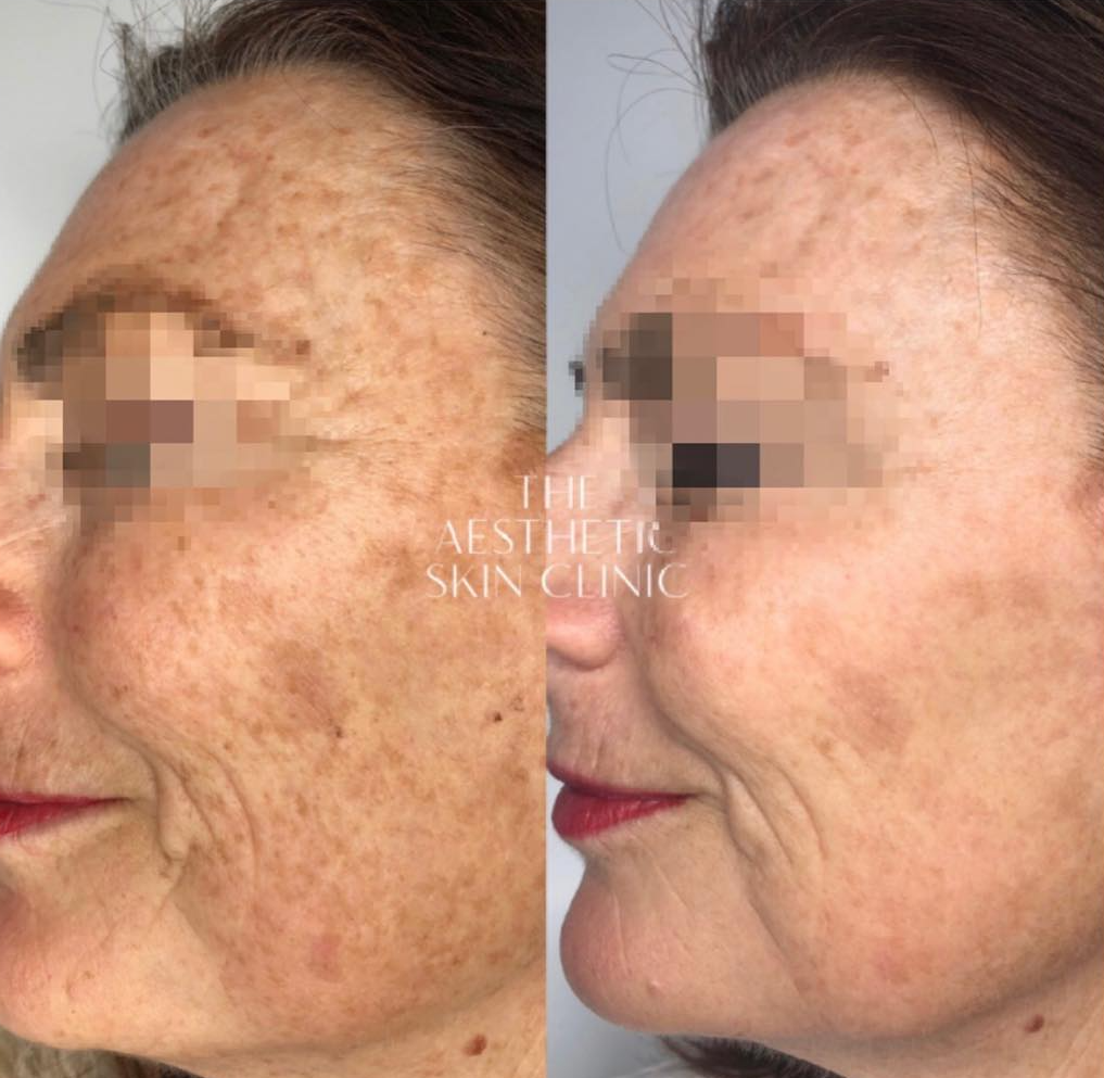 2x Laser Pigmentation Removal Treatments