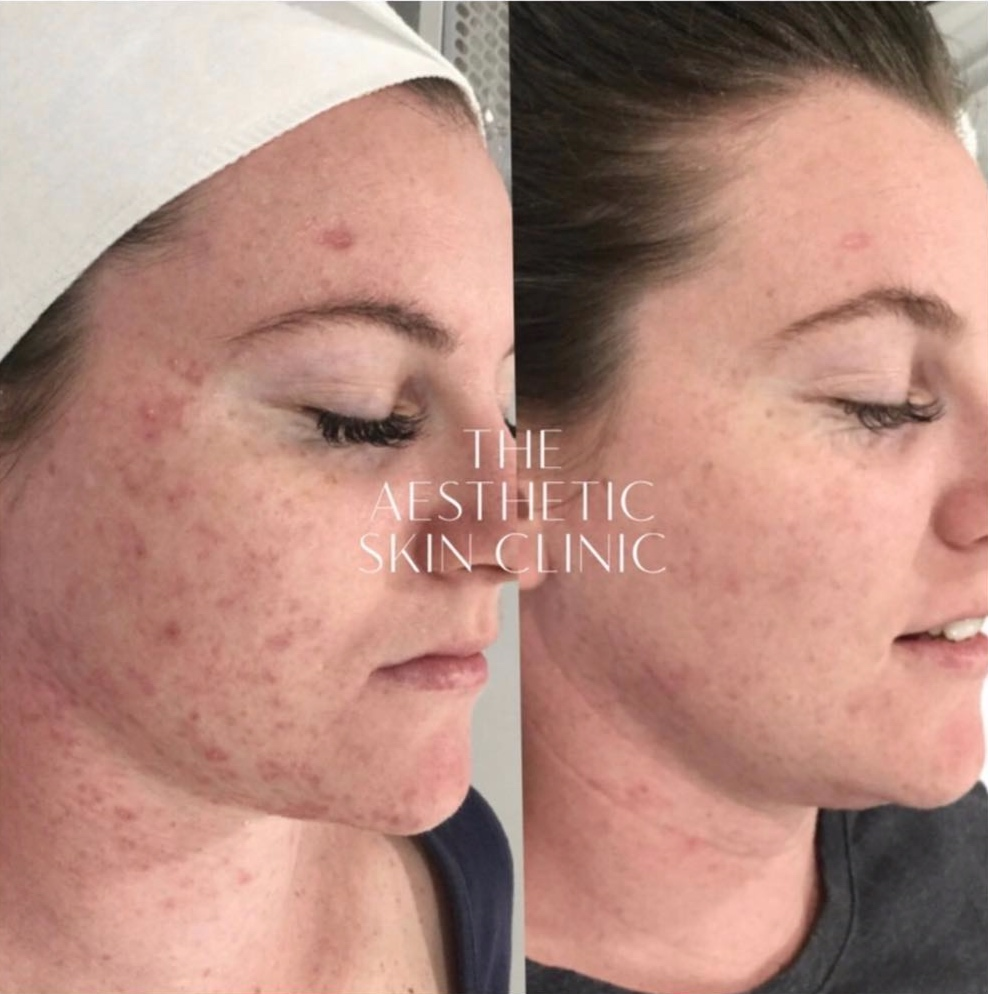2x DermaSweep MD Treatments with a Full Home Prescription
