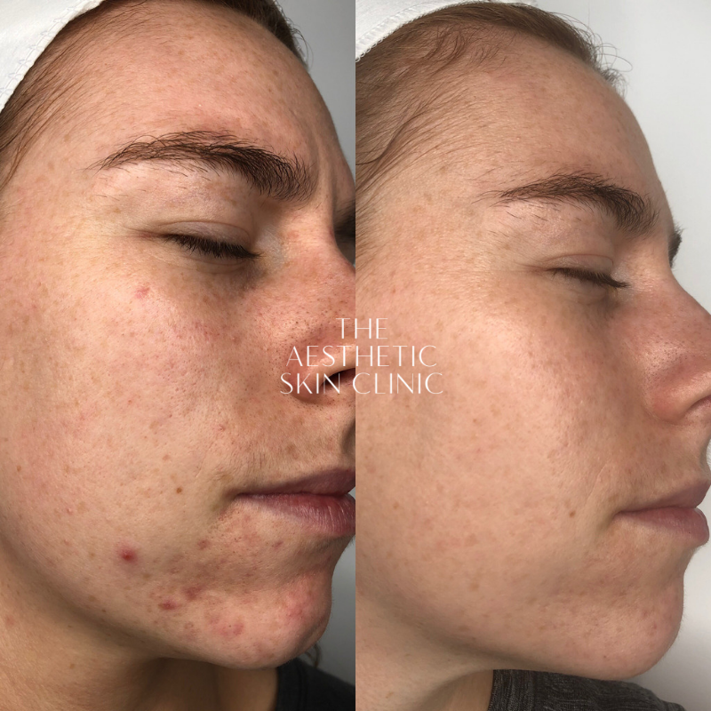 A series of DermaSweep MD treatments with a Full Home Care Prescription