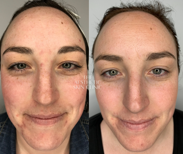 A combination of DermaSweep MD & Medical Peeling with a Full Home Care Prescription