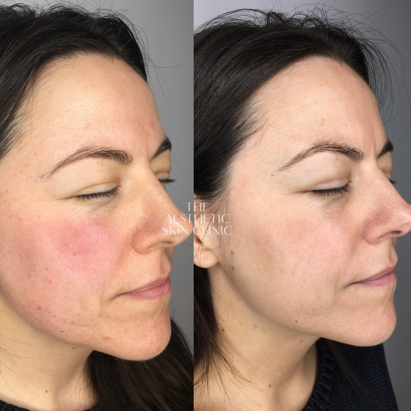 A combination of DermaSweep & Medical Peeling with a Full Home Care Prescription