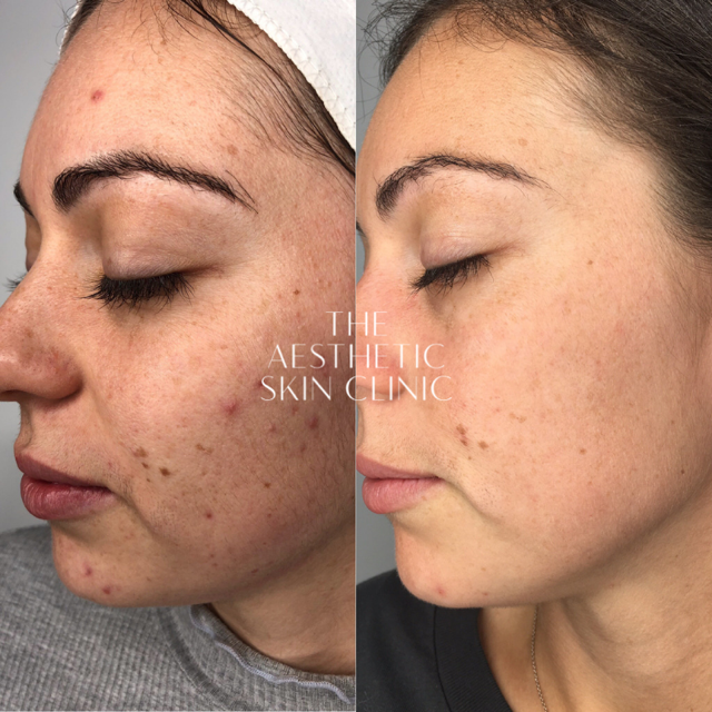 3x DermaSweep MD & Medical Peeling treatments with a Full Home Care Prescription