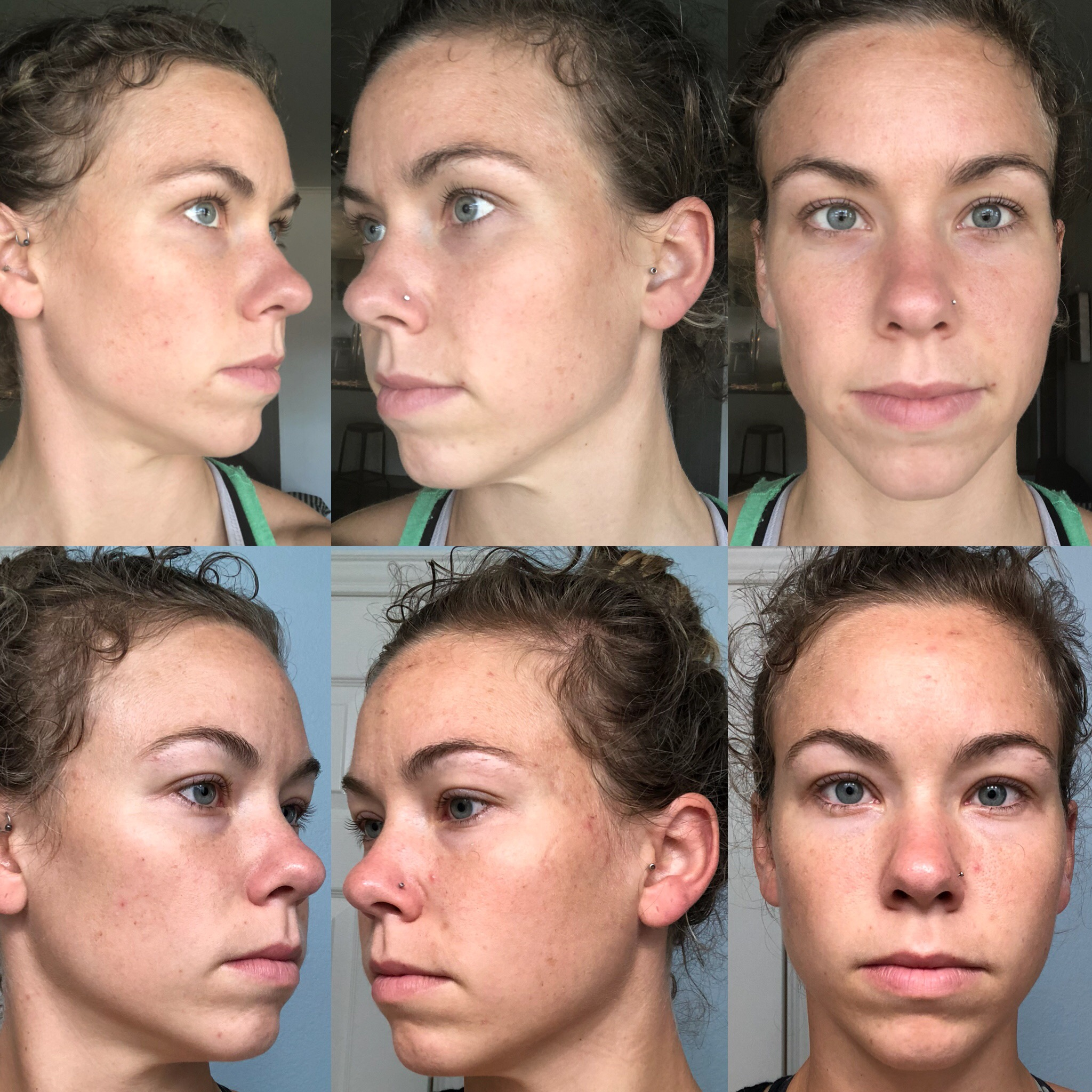 Beth - Before: Bottom RowAfter: Top RowBeth was apart of the first group of women who completed the 30 Days to Clearer Skin challenge! She followed both the nutrition plan & skin care regimen.