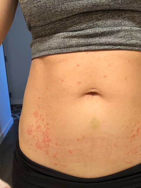About 4 days into the rash