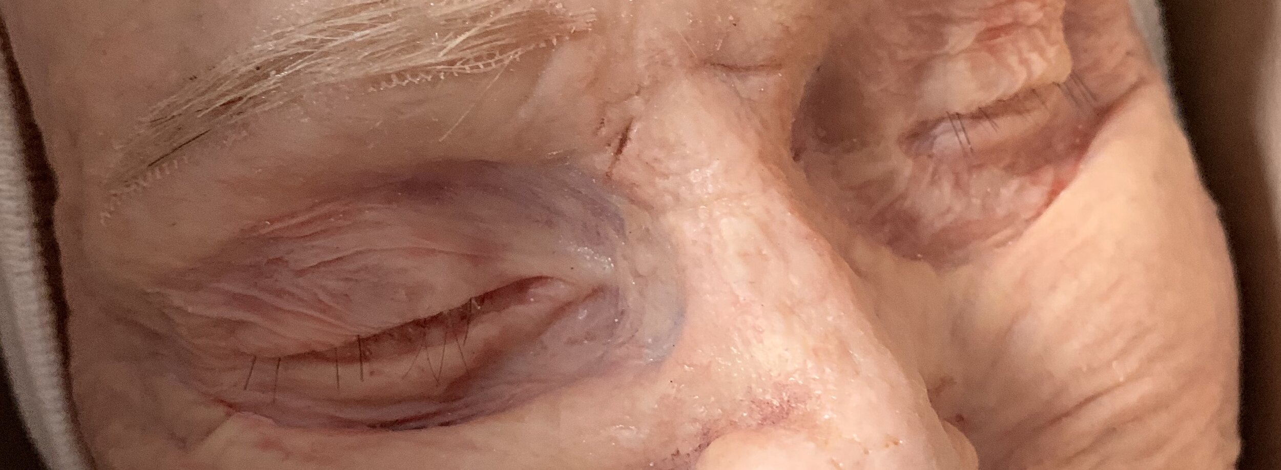 Portion of a full face silicone prosthetic.