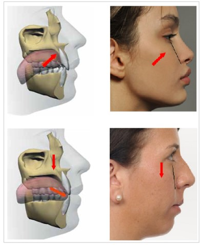 ORTHOTROPICS    Orthotropics is a branch of dentistry that specialises in treating malocclusion by guiding the growth of the facial bones and correcting the oral environment. This treatment creates more space for the teeth and tongue. The main focus of this approach…   By Ragul Gajendran