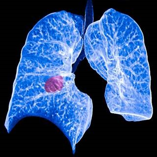 NON-SMALL CELL LUNG CANCER TREATMENTS    Non-small-cell lung carcinoma (NSCLC) is all epithelial lung cancer except small cell lung carcinoma. 85% of all lung cancers are NSCLC…   By Farhia Rashid