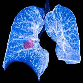 Non Small Lung Cancer 1.jpg