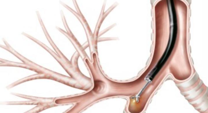 Bronchoscopy -