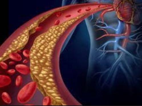 Vascular -