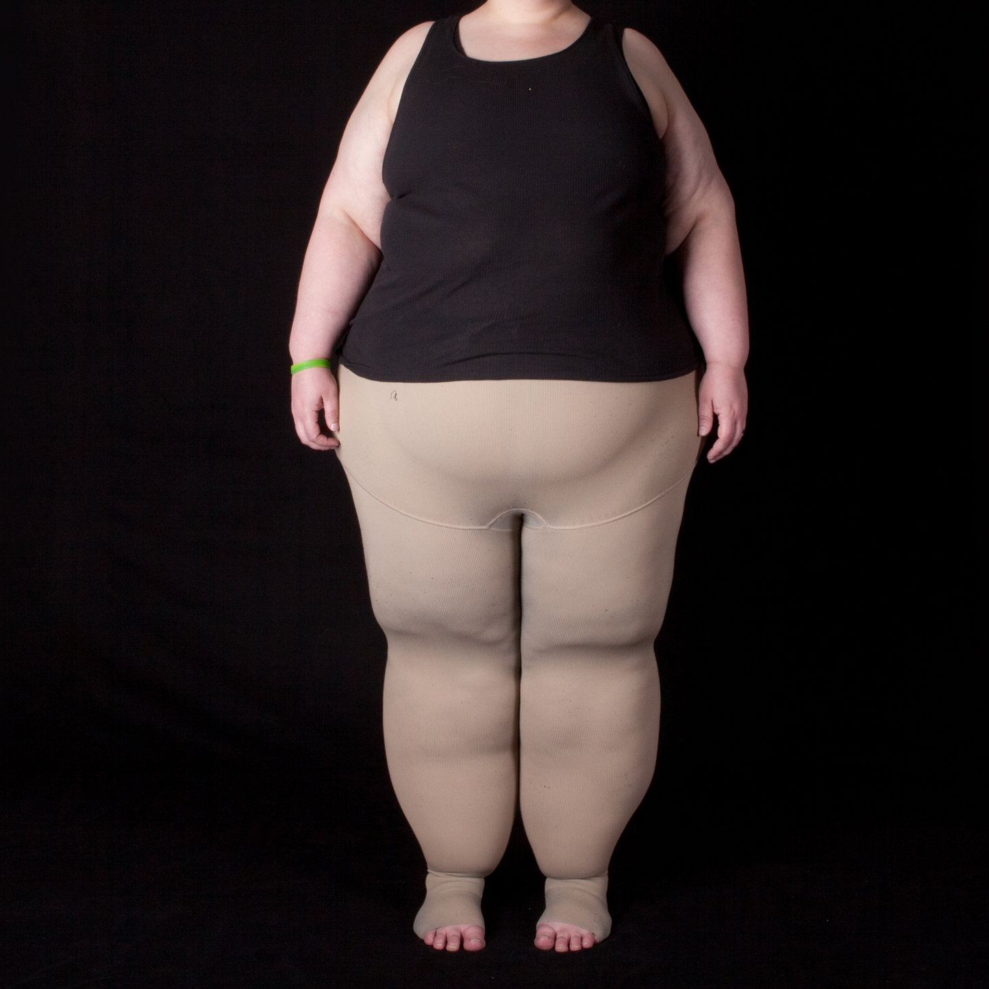 Photo by Fat Disorders Research Society  compression  Compression refers to articles of 'medical' clothing that literally compress the tissue underneath it. Think of it as giving your skin some extra help in propelling lymph fluid back to the trunk so your body can process it. By gently compressing tissue, fluid should not build up and cause problem
