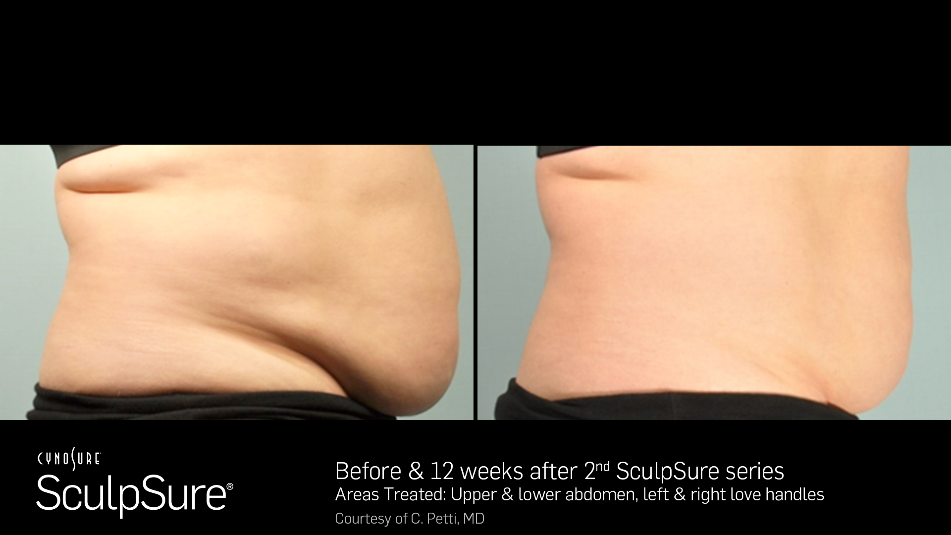 SculpSureBA_SidebySide_Female11.jpg
