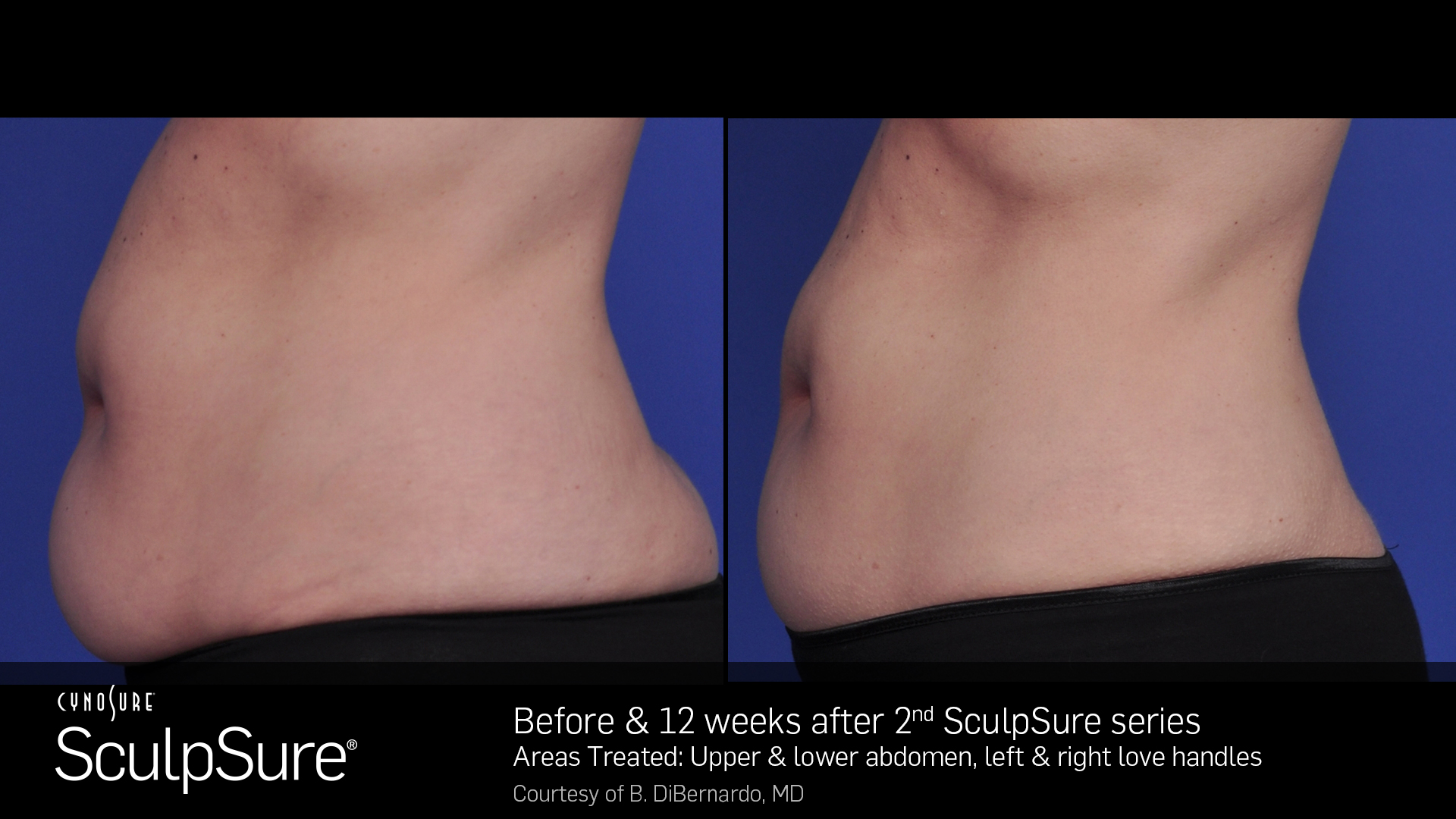 SculpSureBA_SidebySide_Female11.3.jpg