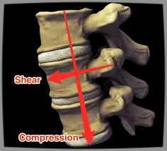 Spinal Compression:Sheer.jpg