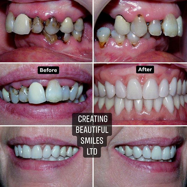 """✨ TRANSFORMATION TUESDAY ✨  This brave lady came in following long-term dental neglect due to an ongoing fear of the dentist. She had longstanding chronic periodontal disease and severely decayed teeth with failing crowns and bridges.  After a thorough consultation and exam with Dr. Butterworth, it was decided that the best route to correct the irreparable damage caused would be to extract the teeth and provide the patient with immediate dentures.  She then went on to have bespoke dentures which were stabilized with dental implants.  It's safe to say that her smile was completely transformed, her confidence restored and she has ultimately overcome her """"fear"""" ❤️ If you are looking at improving your smile and would like some information on how we could help you achieve this, contact the practice on 01925752209 or email enquiries@creatingbeautifulsmiles.co.uk  #dentalimplants #bespokedentures #dentures #denture #smilemakeover  #smilemakeovers #teeth #smile #happyteeth #healthyteeth #implantretaineddentures #cheshire #dentist #cosmeticdentist #happy #transformationtuesday #transformation #dental #dentalhealth #implantdentistry #teeth"""