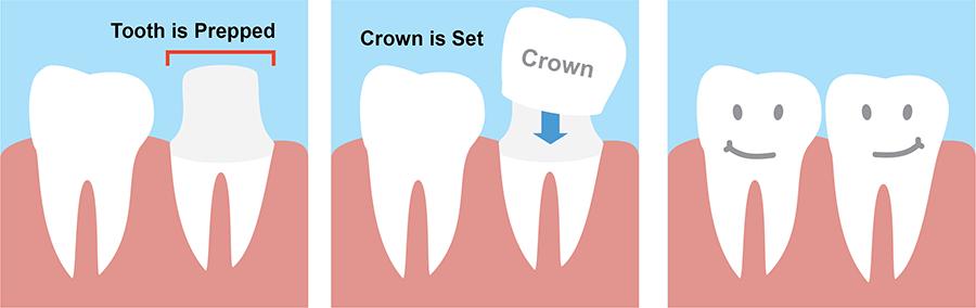 dental-crown-treatment-procedure.png