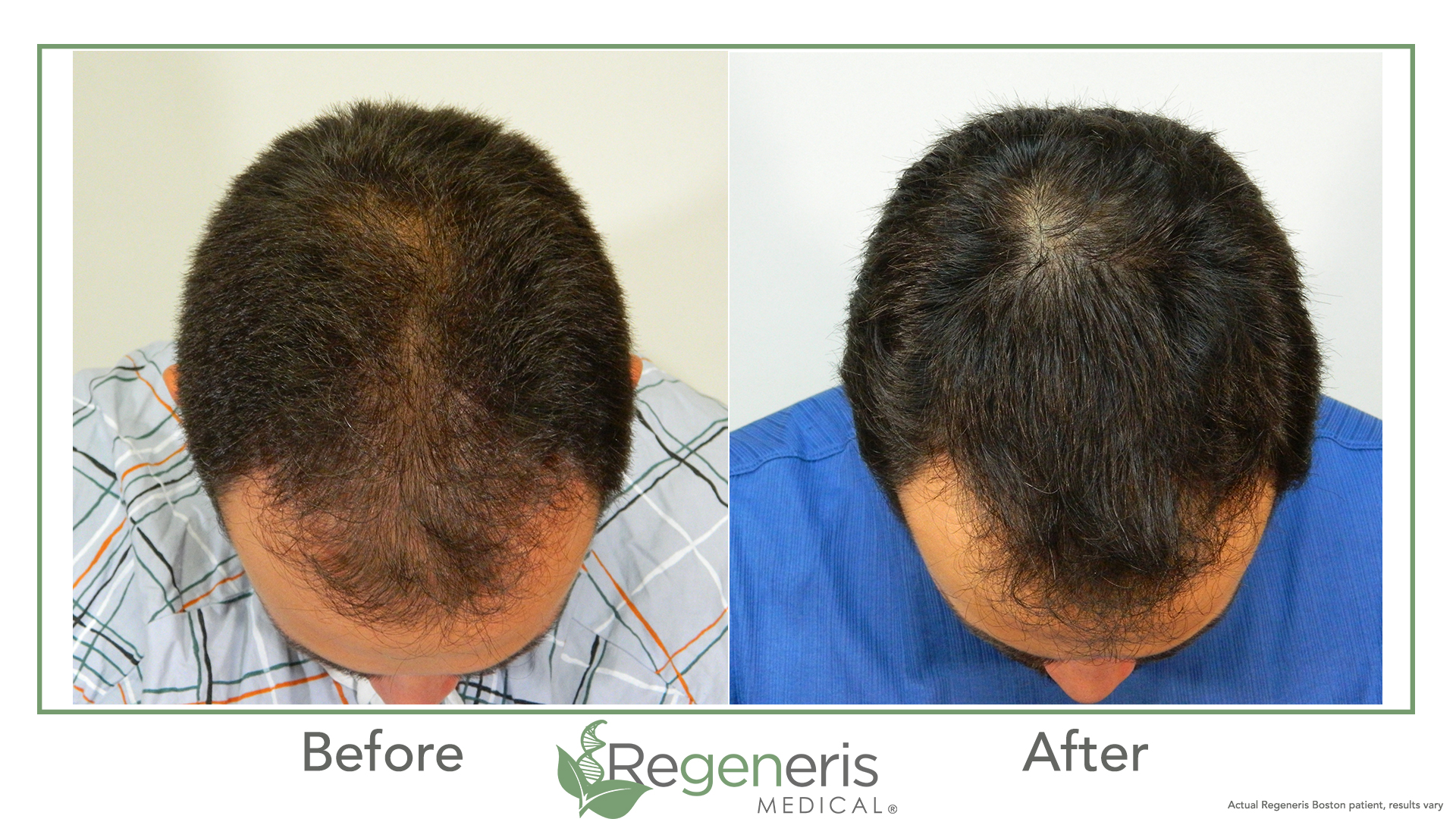 "Regeneris Stem Cell PRP for Hair - Unlock the power of your own cells to grow hair. A combination of stromal vascular fraction and stem cells derived from fat could be the answer to your hair loss. In 2011, Dr. Welter was the first physician to apply the use of adipose derived stem cells in Stromal Vascular Fraction to stimulate growing hair. Since then he has refined the proprietary Regeneris Stem Cell PRP procedure and continues to research this fascinating field of medicine with members of our physician affiliate team. According to Dr. Welter, ""Biocellular Technology is transforming the field of hair restoration. Within a few years, using the technology we are developing, hair loss will be a thing of the past."""